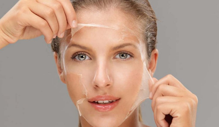 Chemical Skin Peels – Make You Look Younger and Healthier Skin