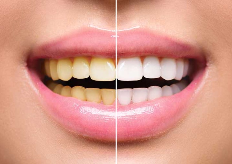 Teeth Whitening Methods and Risks